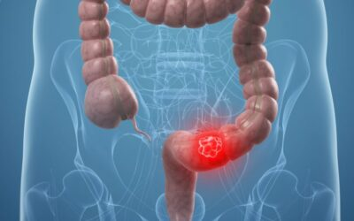 Καρκίνος Παχέος Εντέρου – Πολύποδες παχέος εντέρου