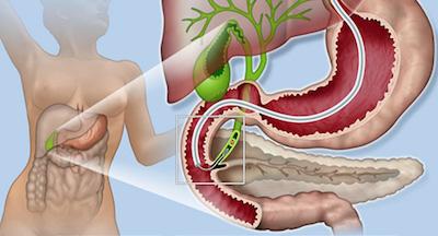 Ενδοσκοπική Παλίνδρομη Χολαγγειοπαγκρεατογραφία (ERCP)